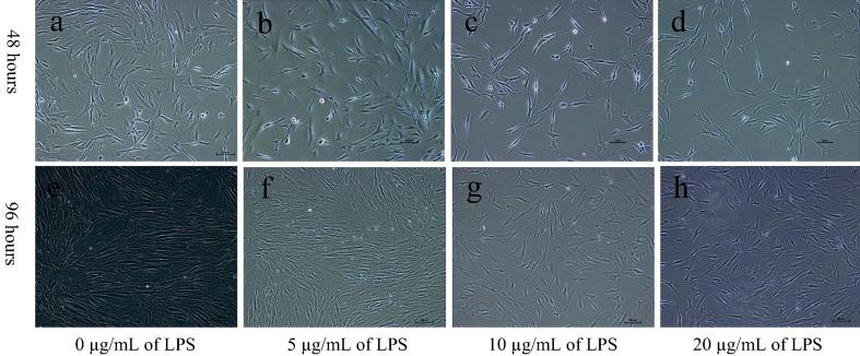 Effect of lipopolysaccharide on cell proliferation and vascular endothelial growth factor secretion of periodontal ligament stem cells.